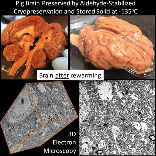שימור מוח של חזיר