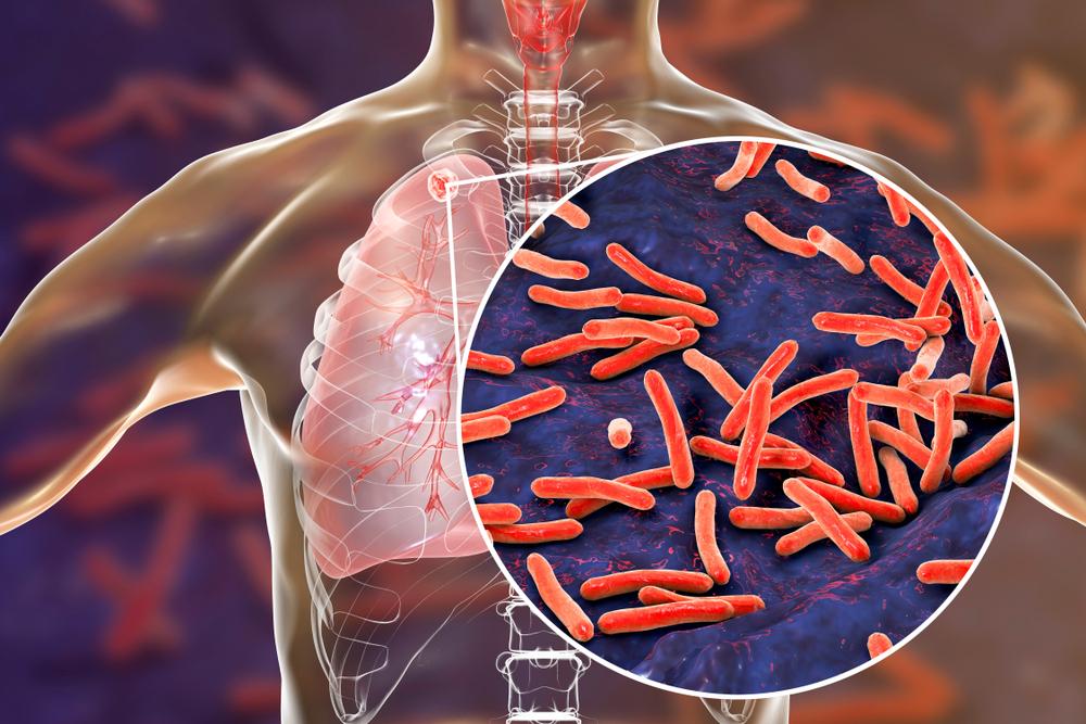 חיידקים שחפת