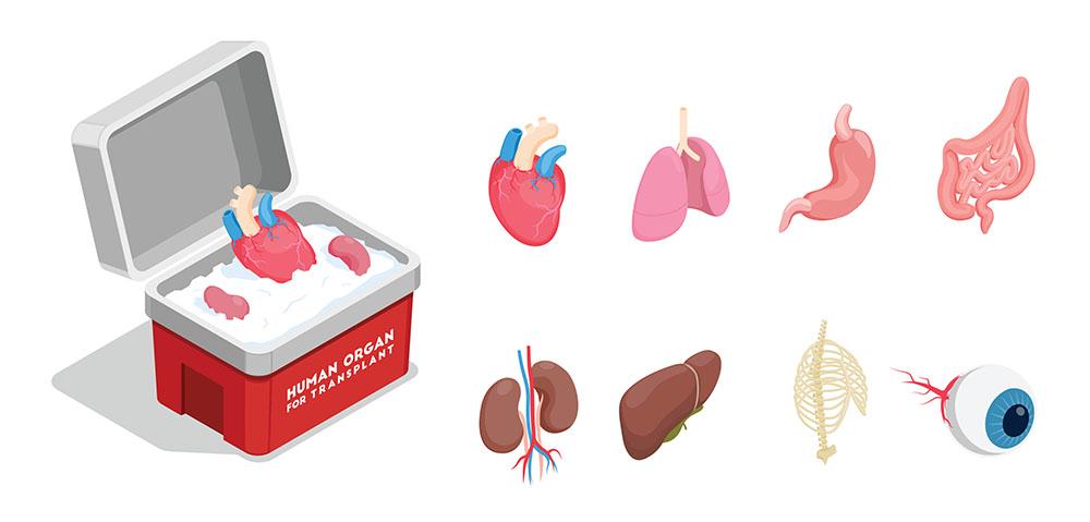 איברים להשתלה